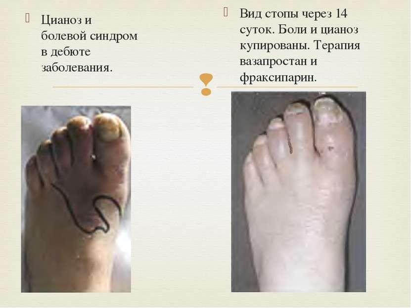 Цианоз и болевой синдром в дебюте заболевания. Вид стопы через 14 суток. Боли...