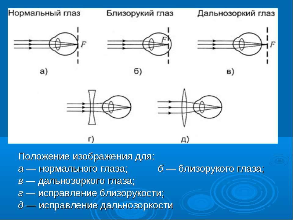Положение изображения для: а— нормального глаза; б— близорукого глаза; в— ...