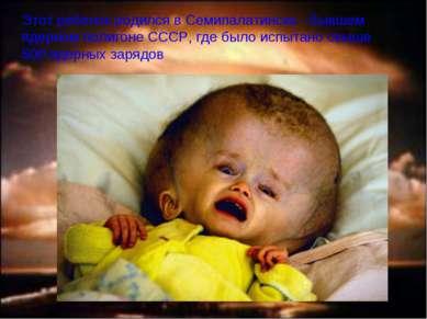 Этот ребенок родился в Семипалатинске - бывшем ядерном полигоне СССР, где был...