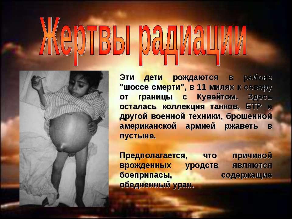 """Эти дети рождаются в районе """"шоссе смерти"""", в 11 милях к северу от границы с ..."""