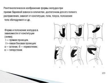 Рентгенологическое изображение формы желудка при приеме бариевой взвеси в кол...