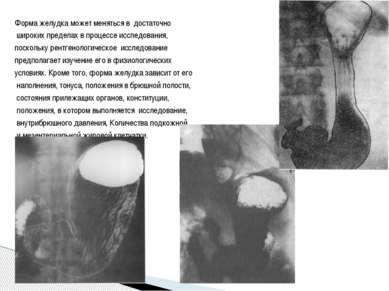 Форма желудка может меняться в достаточно широких пределах в процессе исследо...