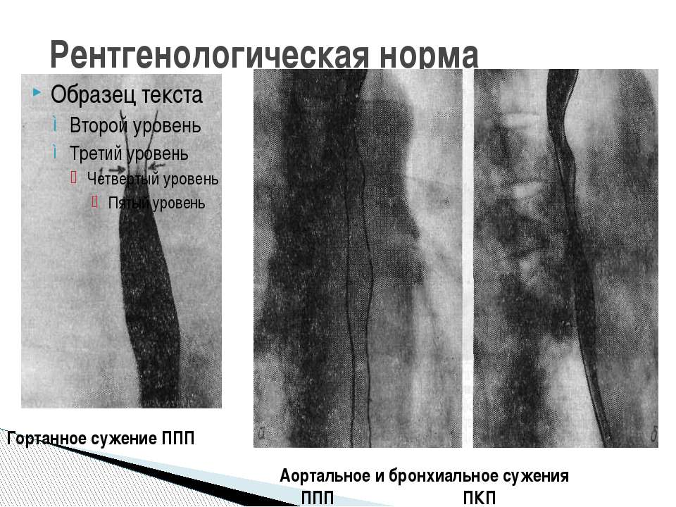 Рентгенологическая норма Гортанное сужение ППП Аортальное и бронхиальное суже...