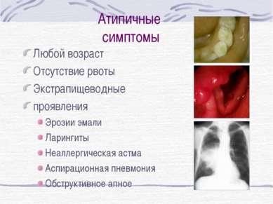 Атипичные симптомы Любой возраст Отсутствие рвоты Экстрапищеводные проявления...