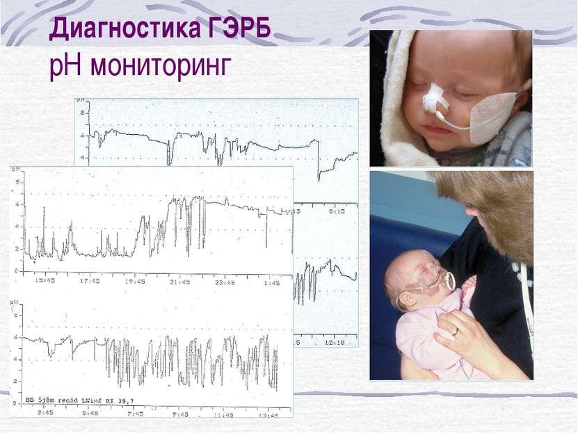 Диагностика ГЭРБ pH мониторинг