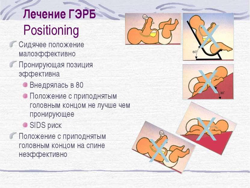 Лечение ГЭРБ Positioning Сидячее положение малоэффективно Пронирующая позиция...