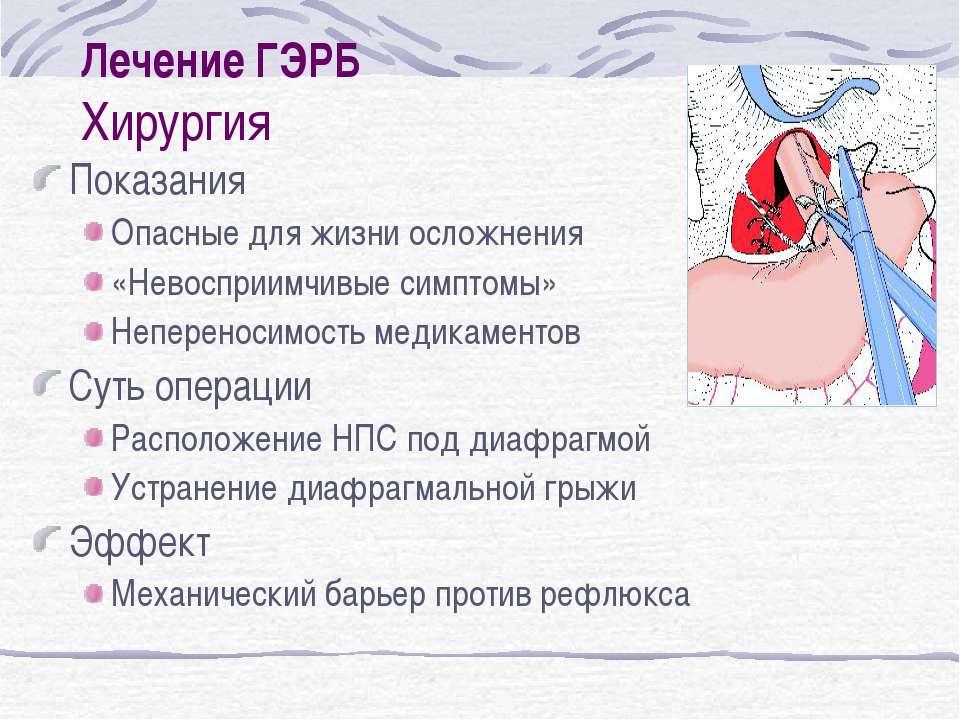 Лечение ГЭРБ Хирургия Показания Опасные для жизни осложнения «Невосприимчивые...