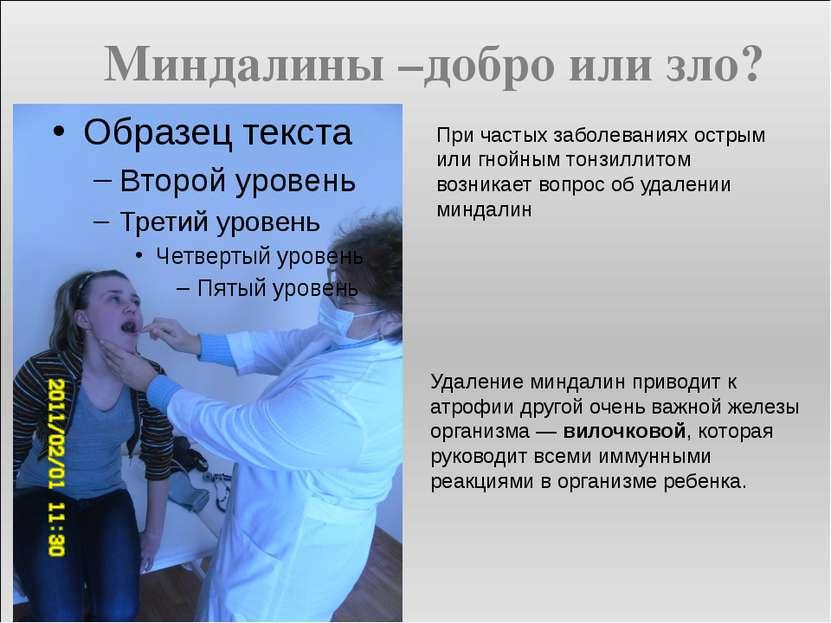 При частых заболеваниях острым или гнойным тонзиллитом возникает вопрос об уд...