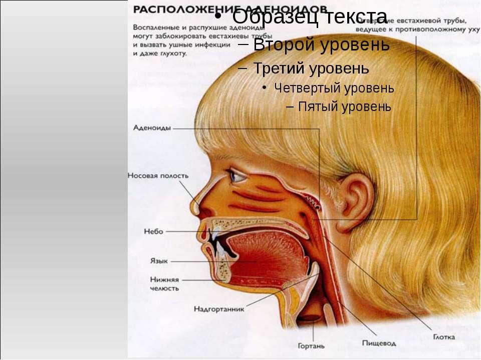 Аденоиды — это увеличенная глоточная миндалина, находящаяся в носоглотке, кот...