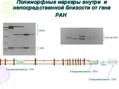 Полиморфные маркеры внутри и непосредственной близости от гена PAH 1 2 3 4 5 ...