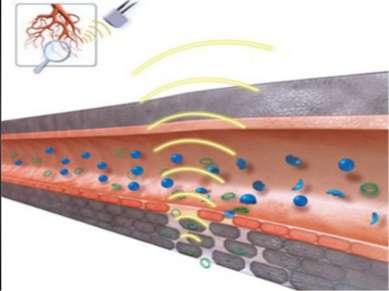 Адгезивный ультразвуковой остеосинтез Сущность ультразвуковой сварки костей (...