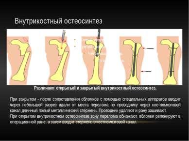 Внутрикостный остеосинтез Различают открытый и закрытый внутрикостный остеоси...