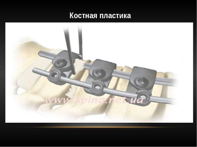 Костная пластика Показания к костной пластике: замедленная консолидация перел...