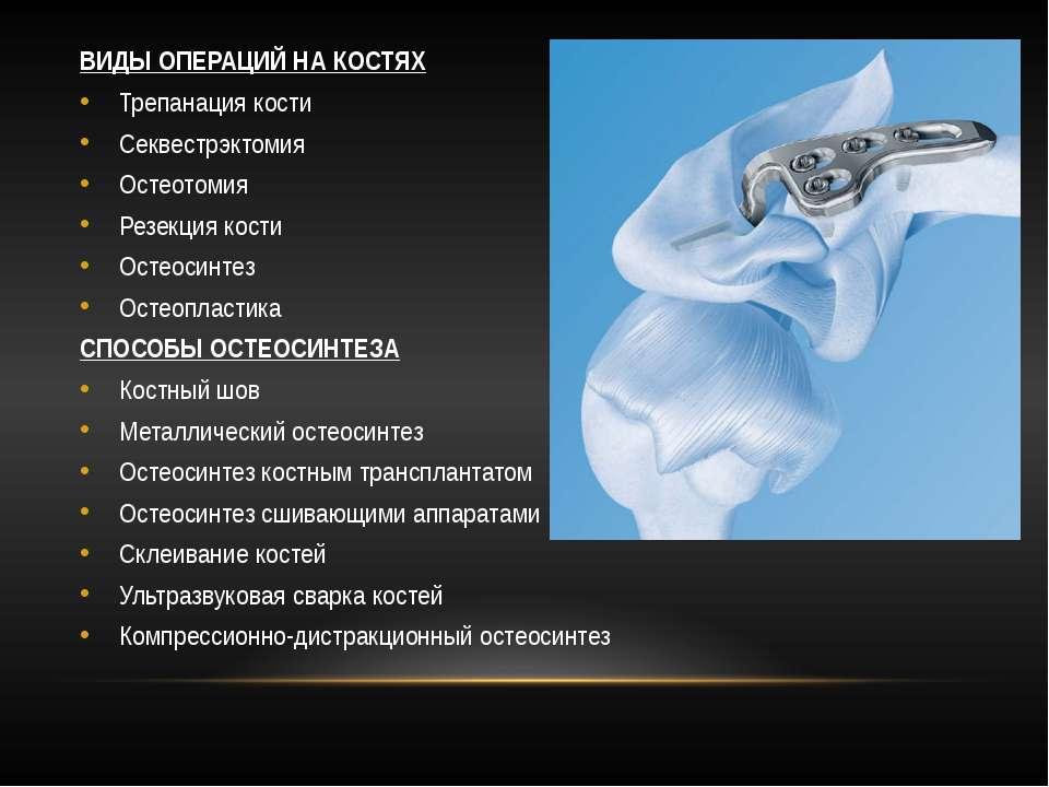 ВИДЫ ОПЕРАЦИЙ НА КОСТЯХ Трепанация кости Секвестрэктомия Остеотомия Резекция ...