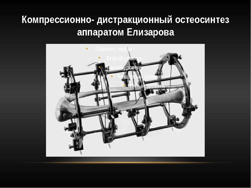 Компрессионно- дистракционный остеосинтез аппаратом Елизарова