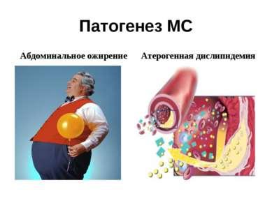 Патогенез МС Абдоминальное ожирение Атерогенная дислипидемия