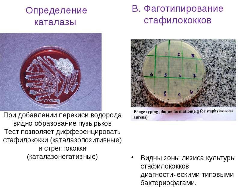 Определение каталазы При добавлении перекиси водорода видно образование пузыр...