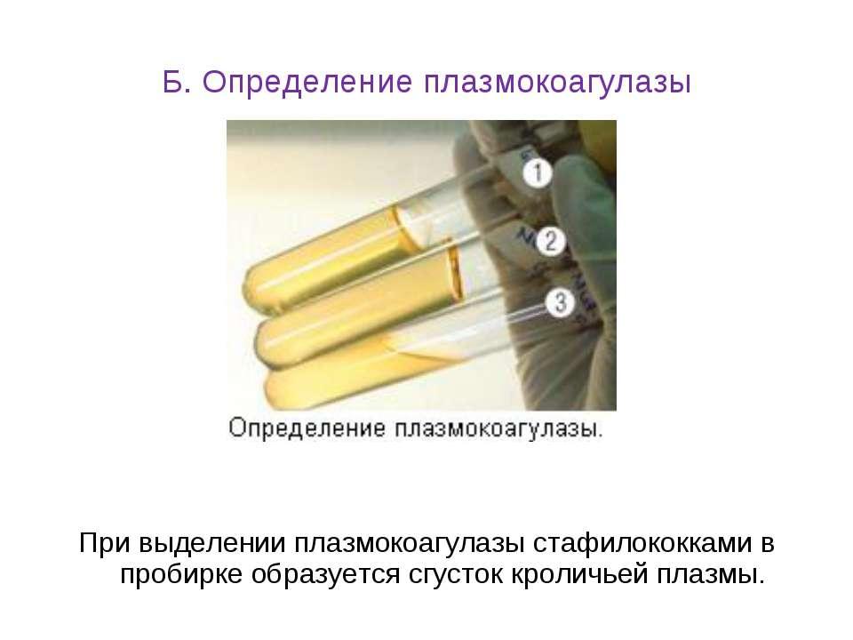 Б. Определение плазмокоагулазы При выделении плазмокоагулазы стафилококками в...