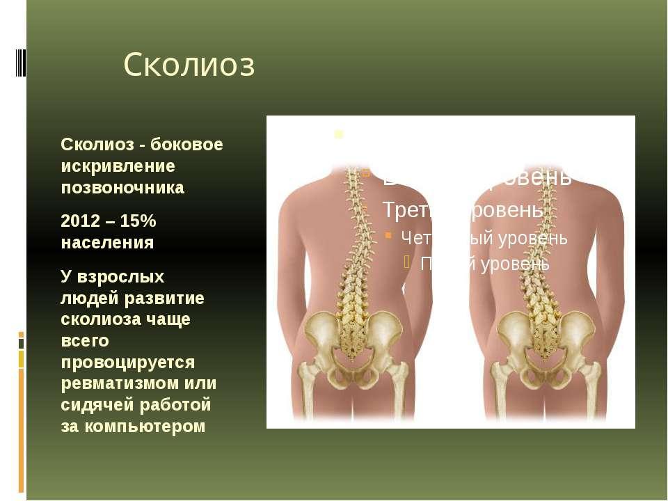 Сколиоз Сколиоз - боковое искривление позвоночника 2012 – 15% населения У взр...