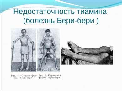 Недостаточность тиамина (болезнь Бери-бери )