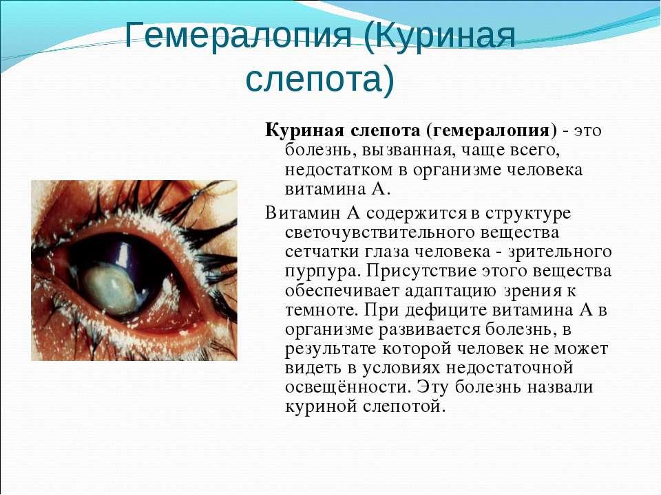 Гемералопия (Куриная слепота) Куриная слепота (гемералопия) - это болезнь, вы...