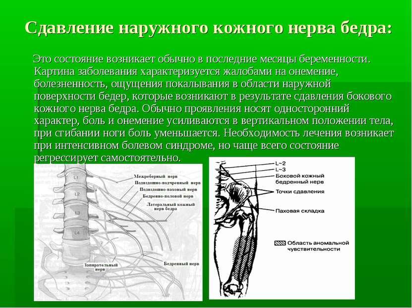 Сдавление наружного кожного нерва бедра: Это состояние возникает обычно в пос...