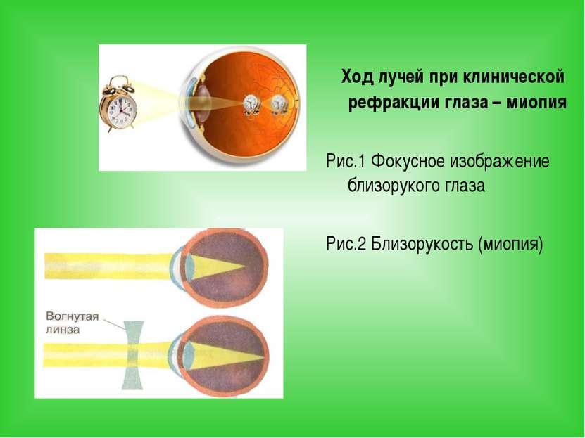 Ход лучей при клинической рефракции глаза – миопия Рис.1 Фокусное изображение...