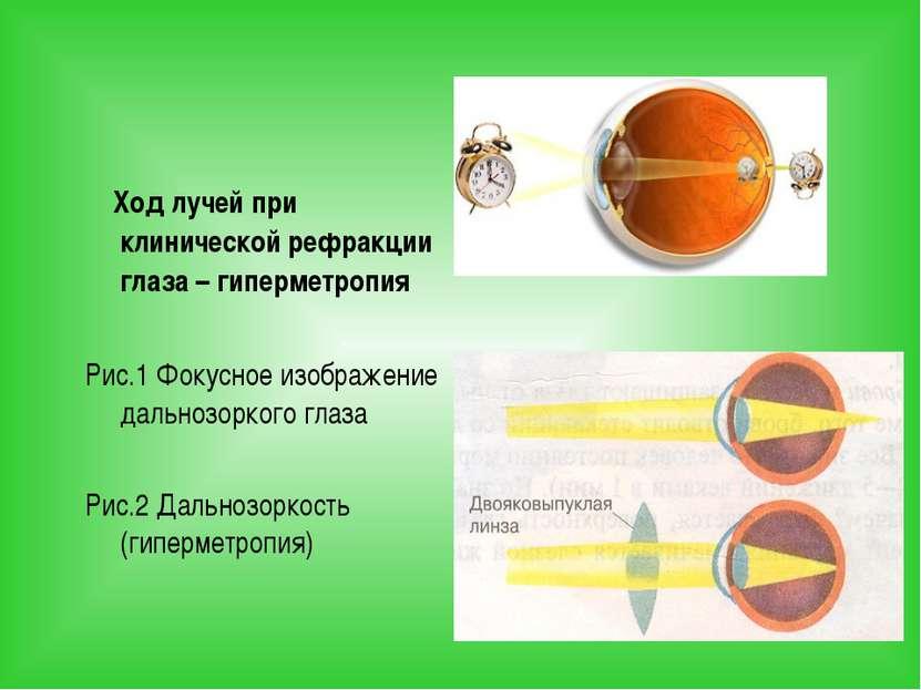 Ход лучей при клинической рефракции глаза – гиперметропия Рис.1 Фокусное изоб...