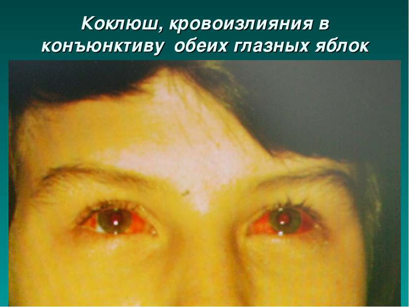 Коклюш, кровоизлияния в конъюнктиву обеих глазных яблок
