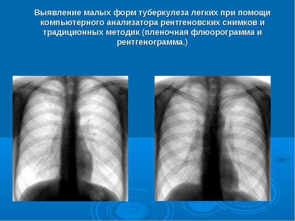 Выявление малых форм туберкулеза легких при помощи компьютерного анализатора ...