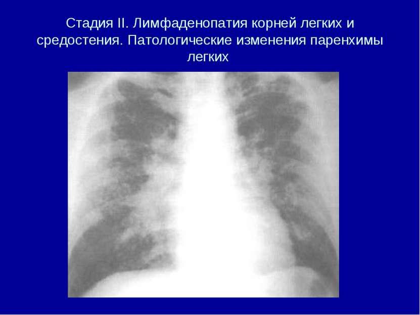 Стадия II. Лимфаденопатия корней легких и средостения. Патологические изменен...