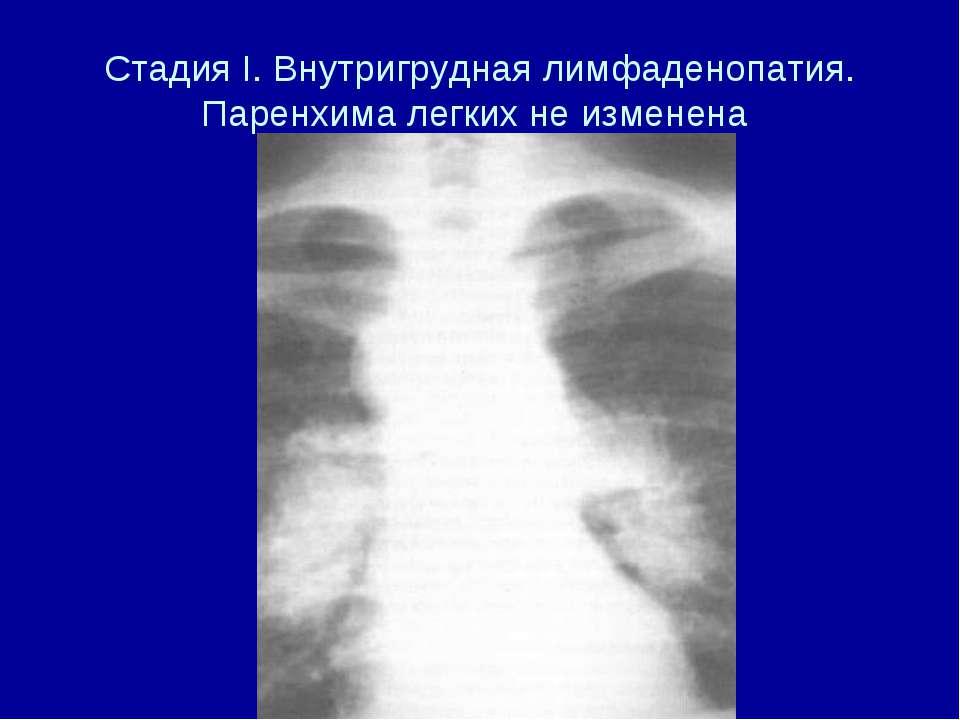 Стадия I. Внутригрудная лимфаденопатия. Паренхима легких не изменена