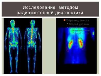 Исследование методом радиоизотопной диагностики.