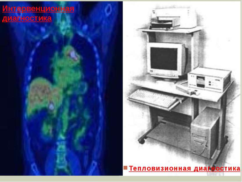 Тепловизионная диагностика Интервенционная диагностика