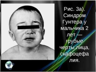 Рис. 3а). Синдром Гунтера у мальчика 2 лет— грубые черты лица, скафоцефалия.