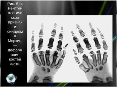 Рис. 6в). Рентгенологические признаки синдрома Моркио— деформация костей кисти.