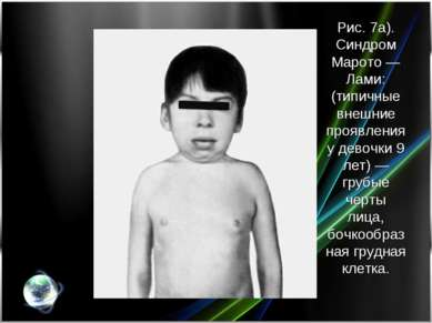 Рис. 7а). Синдром Марото— Лами: (типичные внешние проявления у девочки 9 лет...