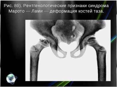Рис. 8б). Рентгенологические признаки синдрома Марото— Лами— деформация кос...