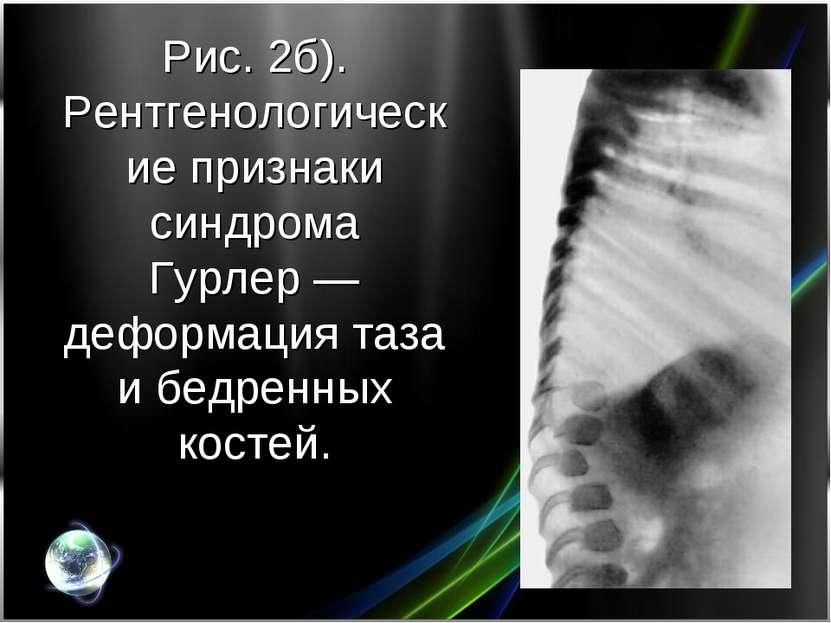 Рис. 2б). Рентгенологические признаки синдрома Гурлер— деформация таза и бед...