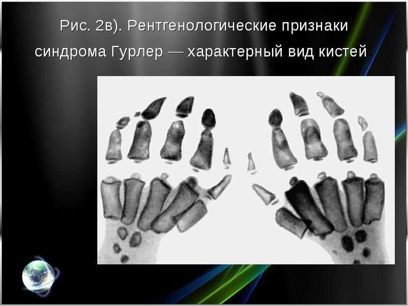 Рис. 2в). Рентгенологические признаки синдрома Гурлер— характерный вид кистей.