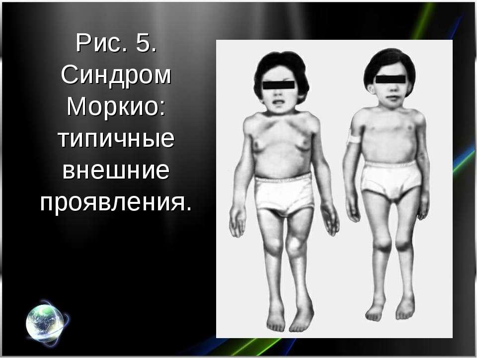 Рис. 5. Синдром Моркио: типичные внешние проявления.