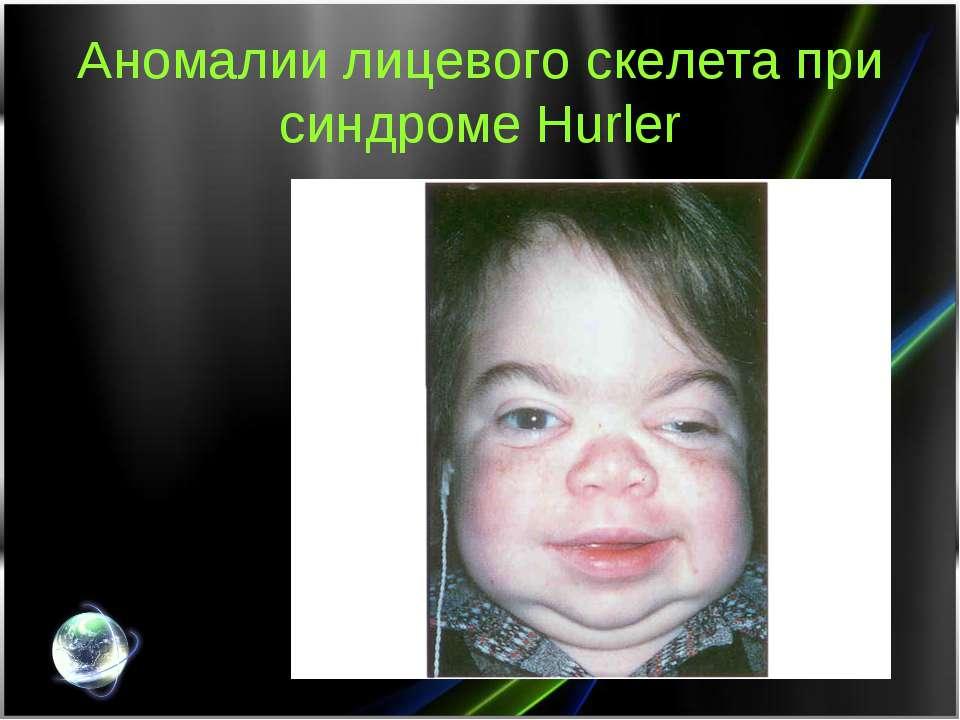 Аномалии лицевого скелета при синдроме Hurler