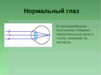 Нормальный глаз В ненапряжённом состоянии собирает параллельные лучи в точке,...