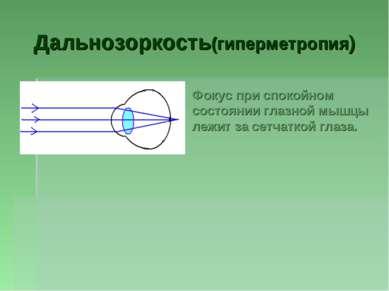 Дальнозоркость(гиперметропия) Фокус при спокойном состоянии глазной мышцы леж...