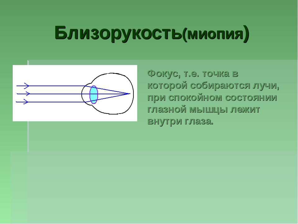 Близорукость(миопия) Фокус, т.е. точка в которой собираются лучи, при спокойн...