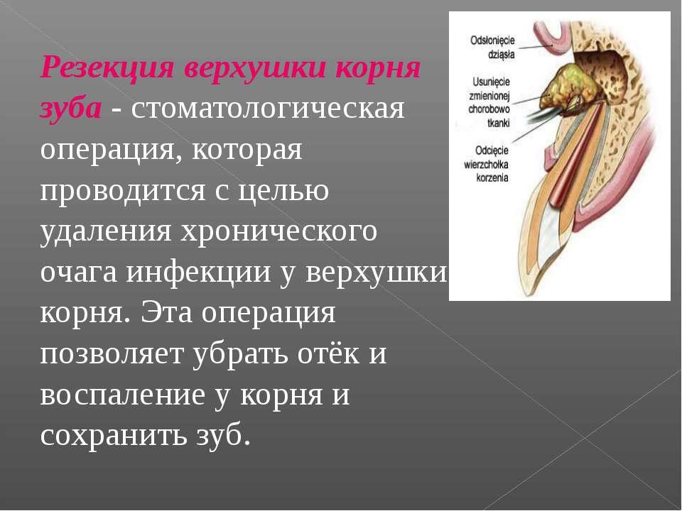 Резекция верхушки корня зуба - стоматологическая операция, которая проводится...
