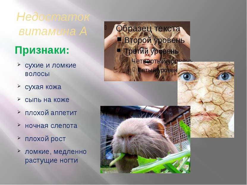 Недостаток витамина А Признаки: сухие и ломкие волосы сухая кожа сыпь на коже...