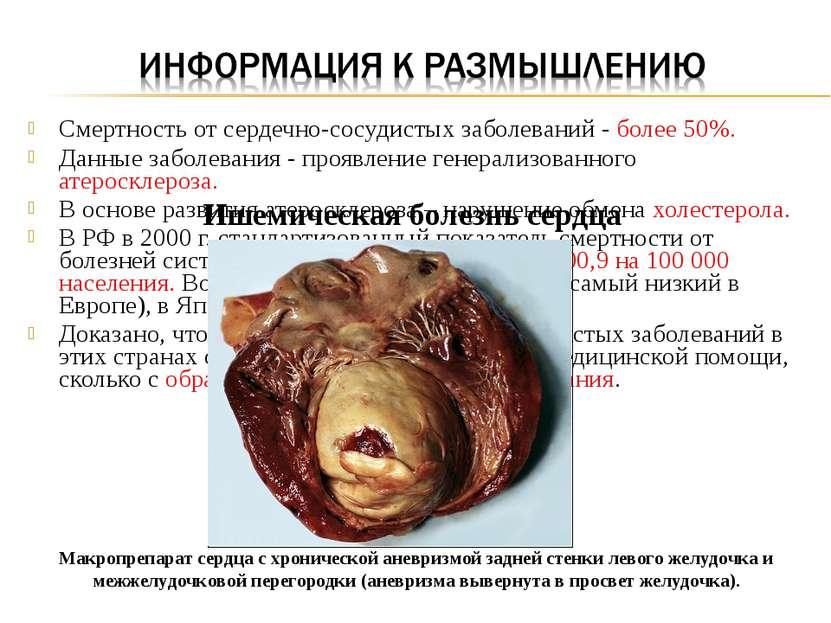 Смертность от сердечно-сосудистых заболеваний - более 50%. Данные заболевания...