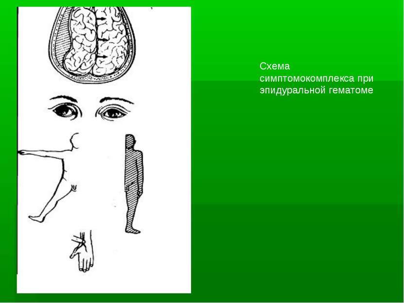 Схема симптомокомплекса при эпидуральной гематоме