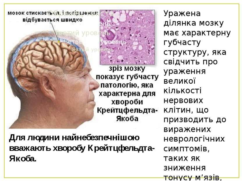 Для людини найнебезпечнішою вважають хворобу Крейтцфельдта-Якоба. Уражена діл...